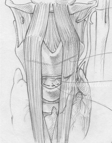 sketch-larynxcrop